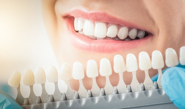 Cosmetic-Dentist-Lacey-WA