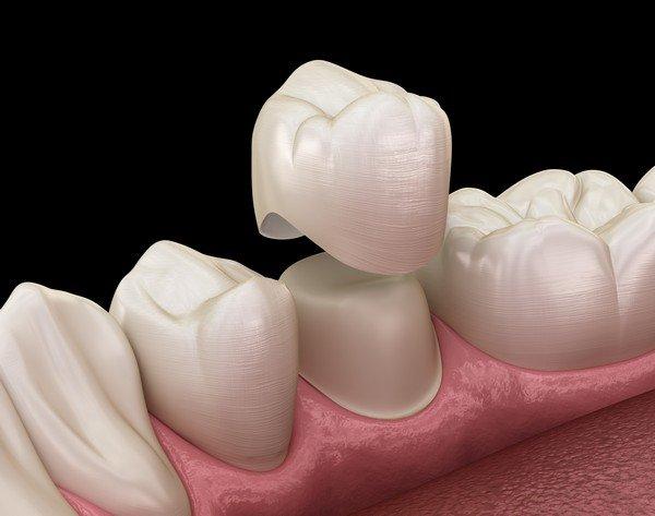 Dental-Crown-Lacey-WA