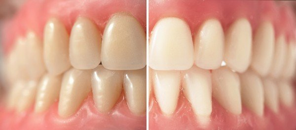 Lacey-Teeth-Whitening-WA