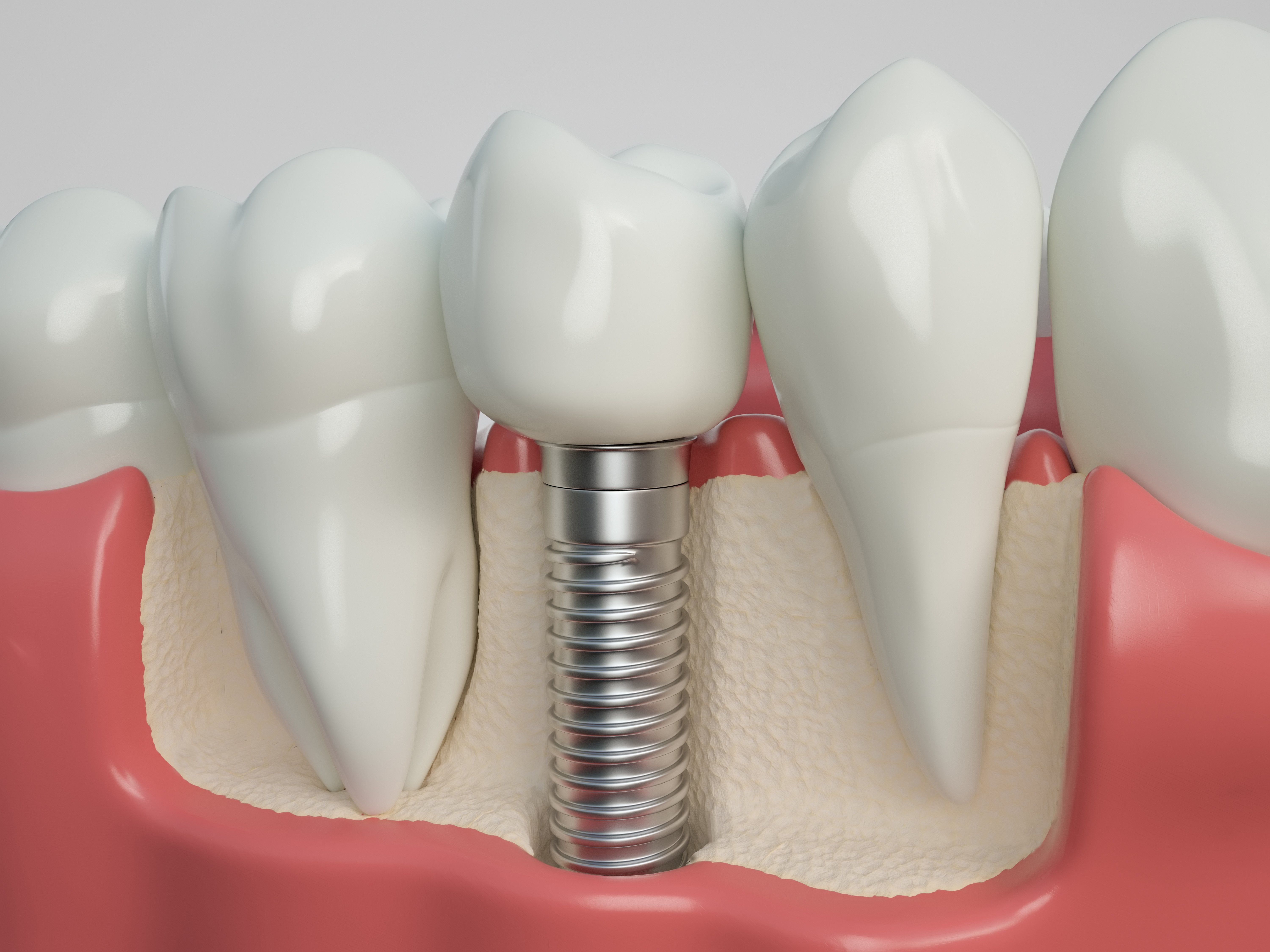 Implants-Rochester-WA